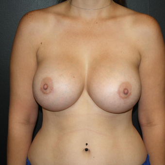 25-34 year old woman treated with Breast Augmentation after 3033197