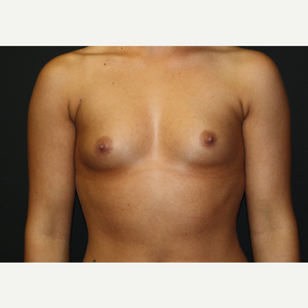 18-24 year old woman treated with Breast Augmentation before 2725568