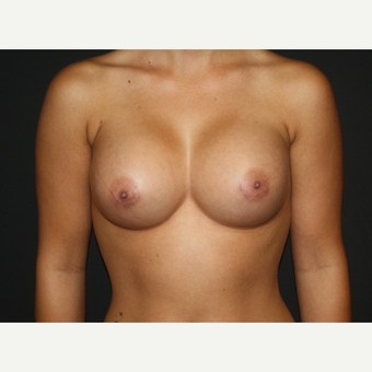 18-24 year old woman treated with Breast Augmentation after 2725568