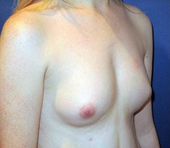 Bilateral Breast Augmentation  -  Pre- & 9 Months  Post-op 3473932