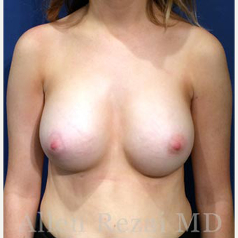 Bilateral Breast Augmentation  -  Pre- & 9 Months  Post-op after 3473932