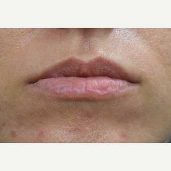 25-34 year old woman treated with Restylane before 3688258