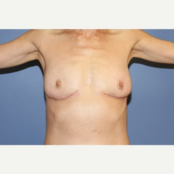 55 year old woman treated with Breast Implant Removal after 1554731