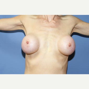 55 year old woman treated with Breast Implant Removal before 1554731