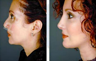 Complete Facial Rejuvenation 138188