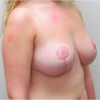Cosmetic Breast Reduction for this 19 Year Old Woman after 3791641