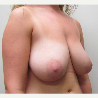 Cosmetic Breast Reduction for this 19 Year Old Woman before 3791641