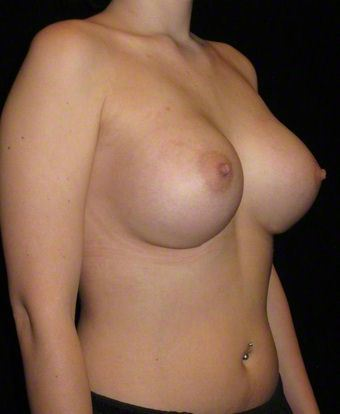 21 year old woman treated with Breast Augmentation 3103644