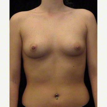 21 year old woman treated with Breast Augmentation before 3103644
