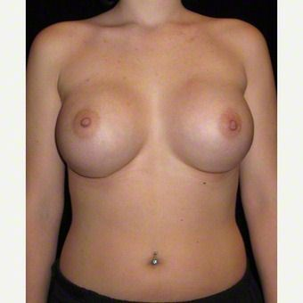 21 year old woman treated with Breast Augmentation after 3103644