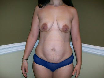 25-34 year old woman treated with Mommy Makeover 3424102