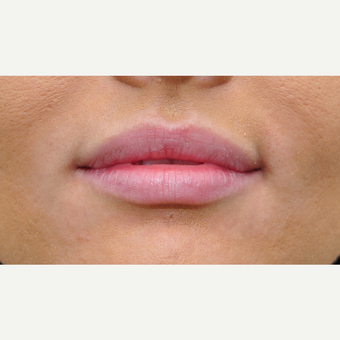 Lip augmentation for fuller lips before 3122281