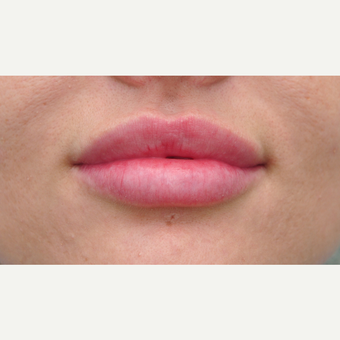 Lip augmentation for fuller lips after 3122281