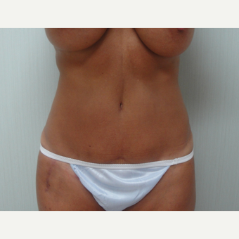 25-34 year old woman treated with Tummy Tuck after 3823381