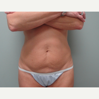 25-34 year old woman treated with Tummy Tuck before 3823381