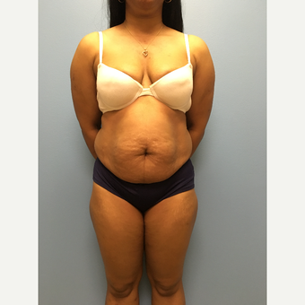 31 year-old woman treated with Tummy Tuck and Lipo 360 before 3487733