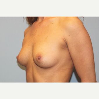 25-34 year old woman treated with Breast Augmentation before 3570148