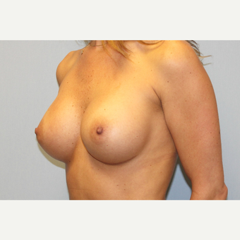 25-34 year old woman treated with Breast Augmentation after 3570148