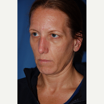 35-44 year old woman treated with Facelift before 3610229