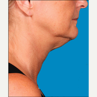 "55-64 year old woman treated with Kybella for corruption of sub mental fullness /""double chin"" before 2334997"