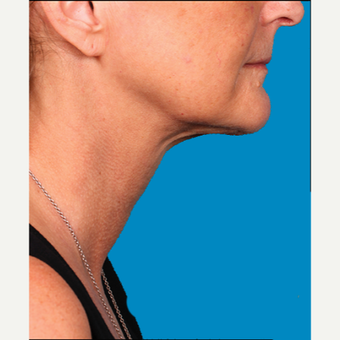"55-64 year old woman treated with Kybella for corruption of sub mental fullness /""double chin"" after 2334997"