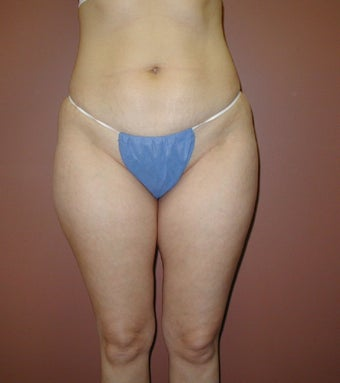 Liposuction of Inner and Outer Thighs and Medial Knee before 1207729