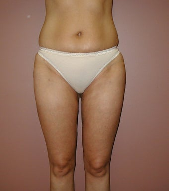 Liposuction of Inner and Outer Thighs and Medial Knee after 1207729