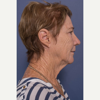 65-74 year old woman treated with Facelift before 3739364