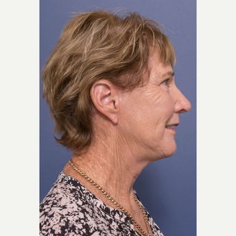 65-74 year old woman treated with Facelift after 3739364