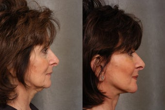 66 year old woman with facial aging 1497849