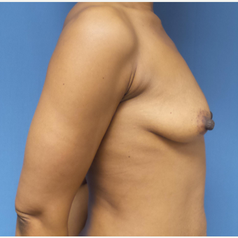 35-44 year old woman treated with Breast Augmentation before 3038402