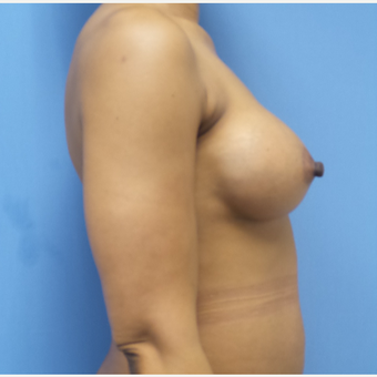 35-44 year old woman treated with Breast Augmentation after 3038402
