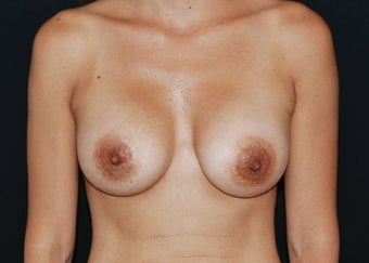 Breast Asymmetry after 949095