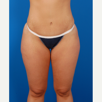 25-34 year old woman treated with Tummy Tuck after 3576798