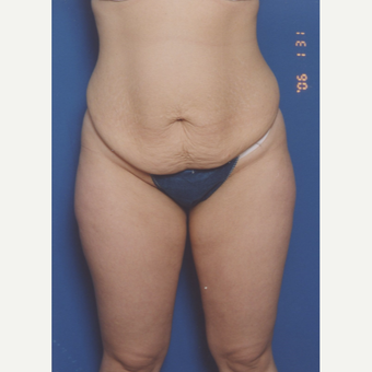 25-34 year old woman treated with Tummy Tuck before 3576798