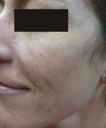 35-44 year old woman treated with IPL after 2716314