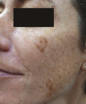 35-44 year old woman treated with IPL before 2716314