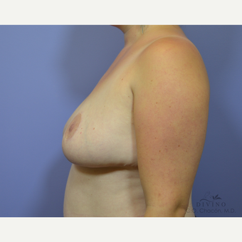 25-34 year old woman treated with Breast Lift after 3420145