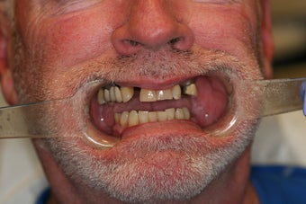 55 year old male treated with All-on-4 Dental Implant Procedure before 1053460