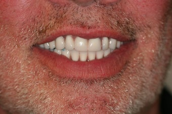 55 year old male treated with All-on-4 Dental Implant Procedure after 1053460