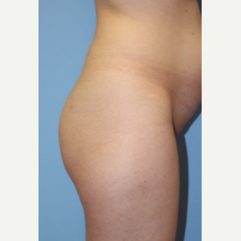 25-34 year old woman treated with Brazilian Butt Lift before 3123728