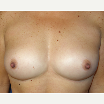 25-34 year old woman treated with Breast Fat Transfer after 3142647