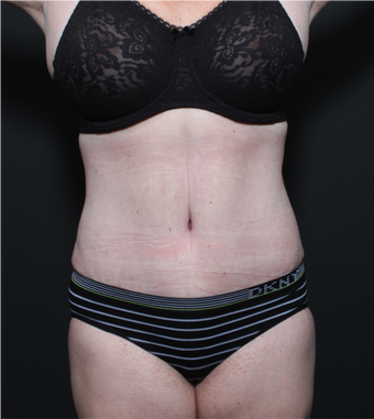 This 35 year old woman underwent full tummy tuck after 1149105