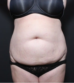 This 35 year old woman underwent full tummy tuck before 1149105