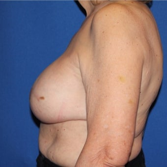 65-74 year old woman treated with Breast Reconstruction after 1984899