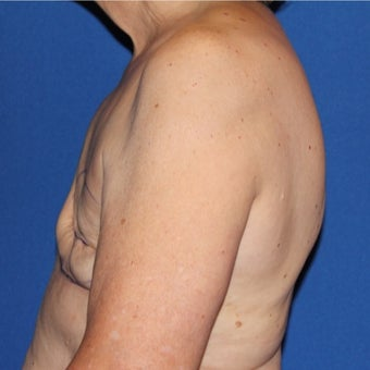 65-74 year old woman treated with Breast Reconstruction before 1984899