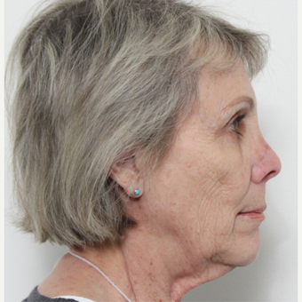 65-74 year old woman treated with Facelift before 3221311