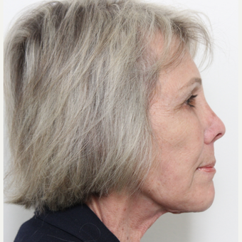 65-74 year old woman treated with Facelift after 3221311