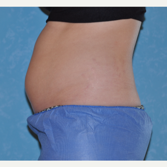 20 year old woman treated with CoolSculpting before 3168897
