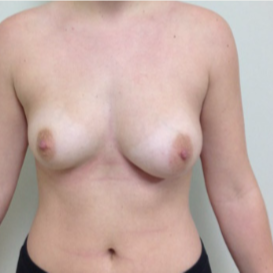 18-24 year old woman treated with Breast Augmentation before 3340734